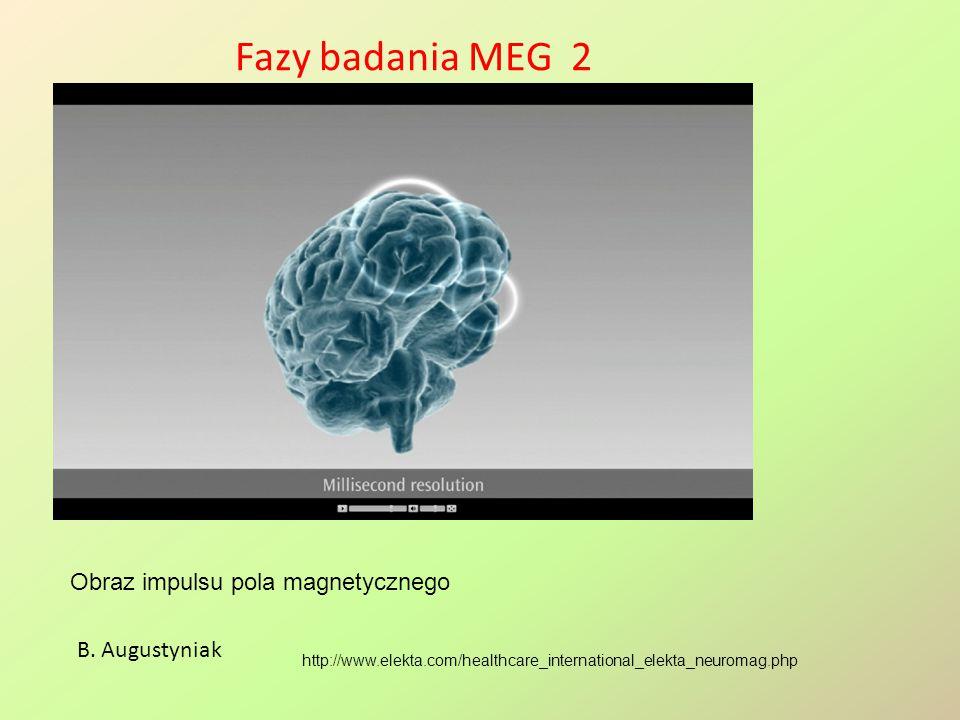 Fazy badania MEG 2 Obraz impulsu pola magnetycznego B. Augustyniak