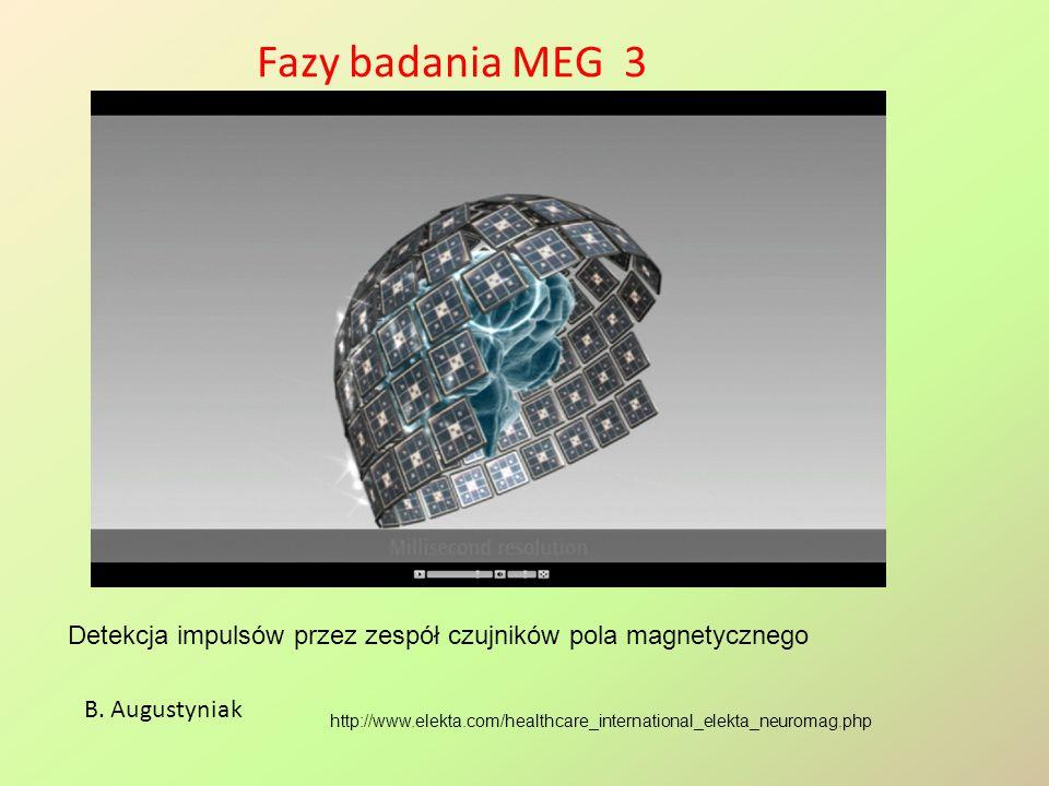 Fazy badania MEG 3 Detekcja impulsów przez zespół czujników pola magnetycznego. B. Augustyniak.