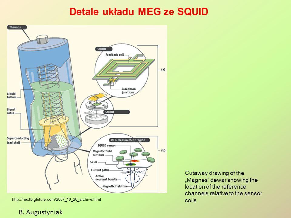 Detale układu MEG ze SQUID