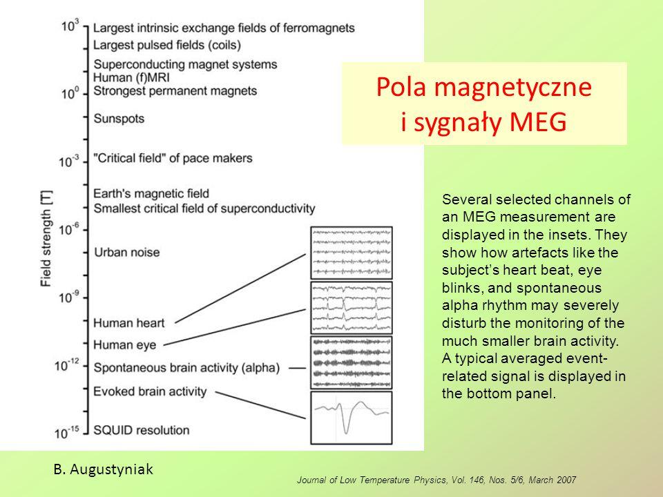 Pola magnetyczne i sygnały MEG
