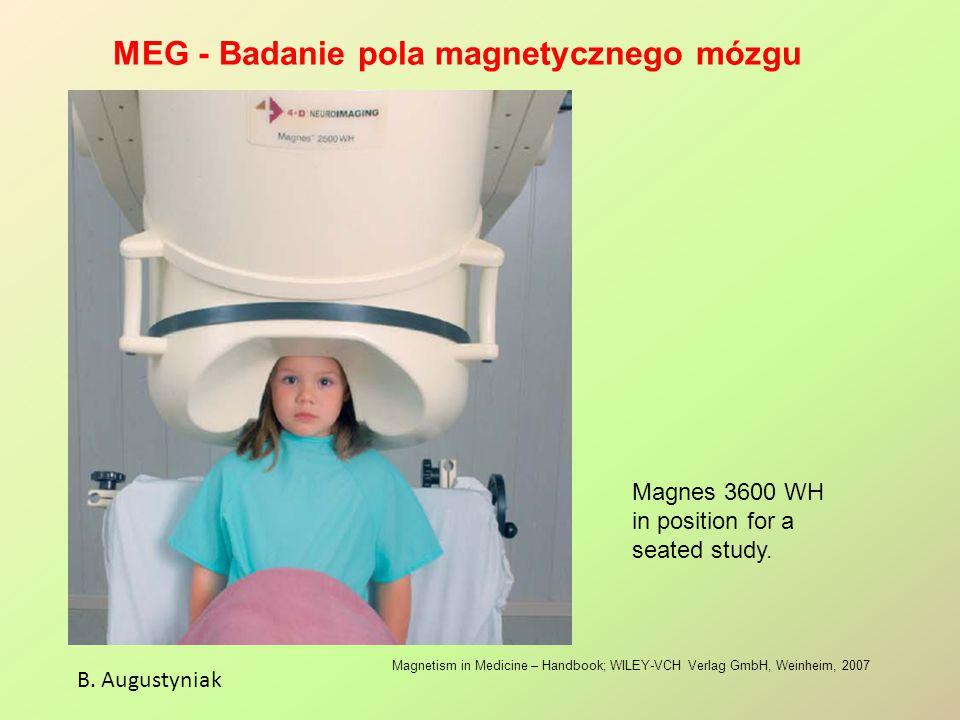 MEG - Badanie pola magnetycznego mózgu
