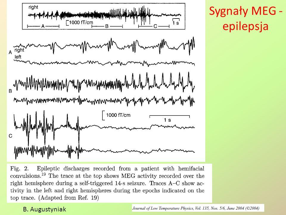 Sygnały MEG -epilepsja