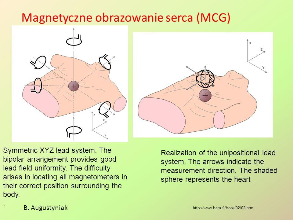 Magnetyczne obrazowanie serca (MCG)