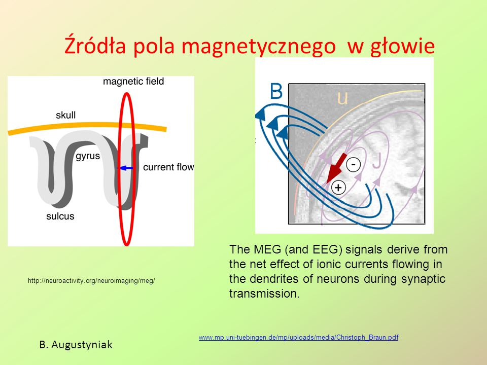 Źródła pola magnetycznego w głowie