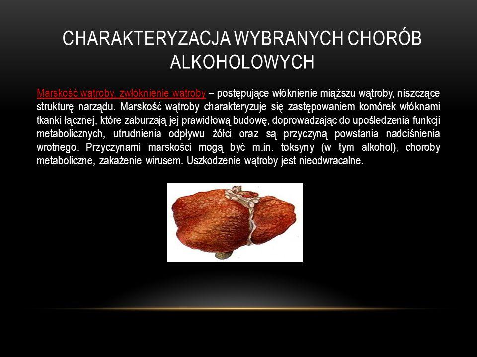 Charakteryzacja wybranych chorób alkoholowych