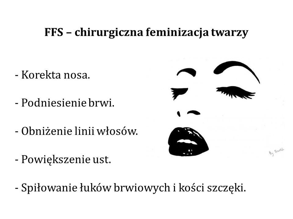 FFS – chirurgiczna feminizacja twarzy