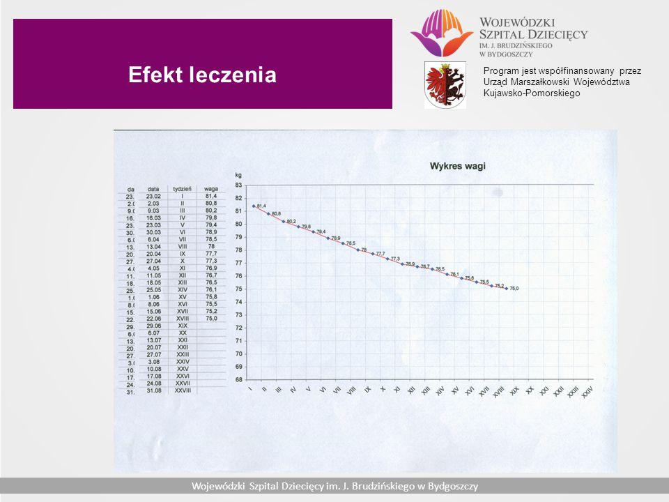 Efekt leczenia Program jest współfinansowany przez Urząd Marszałkowski Województwa Kujawsko-Pomorskiego.