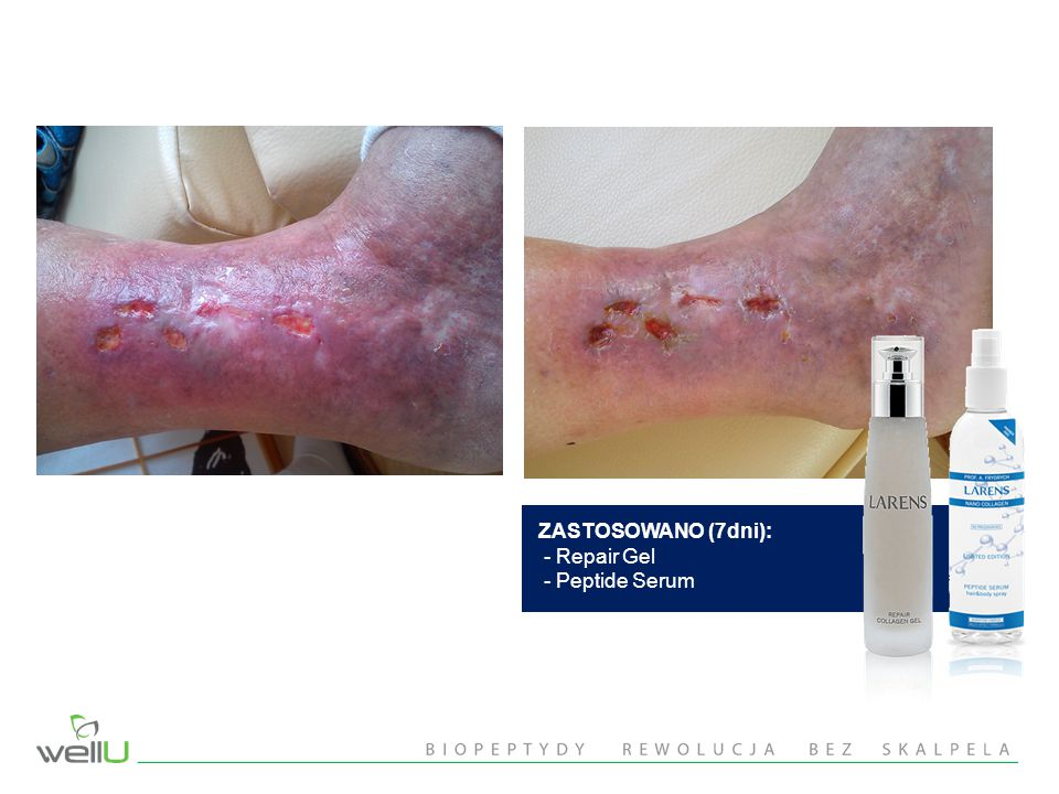 ZASTOSOWANO (7dni): - Repair Gel - Peptide Serum