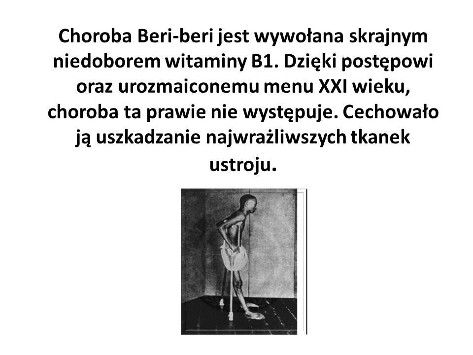 Choroba Beri-beri jest wywołana skrajnym niedoborem witaminy B1