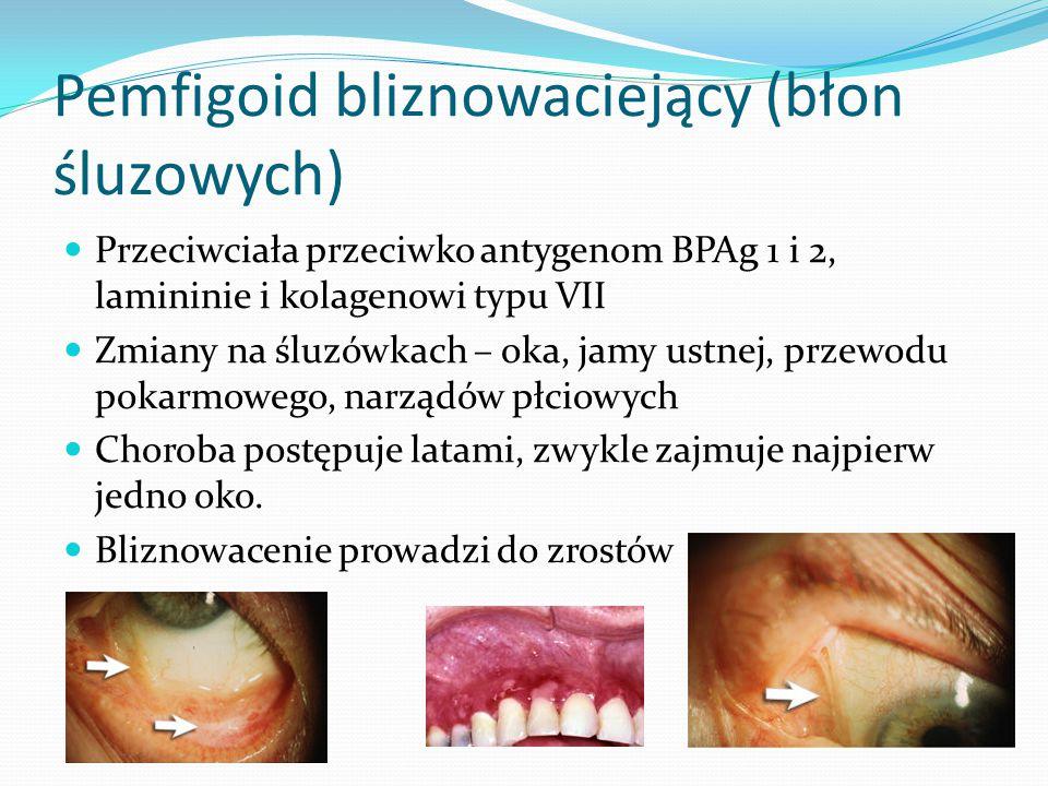 Pemfigoid bliznowaciejący (błon śluzowych)