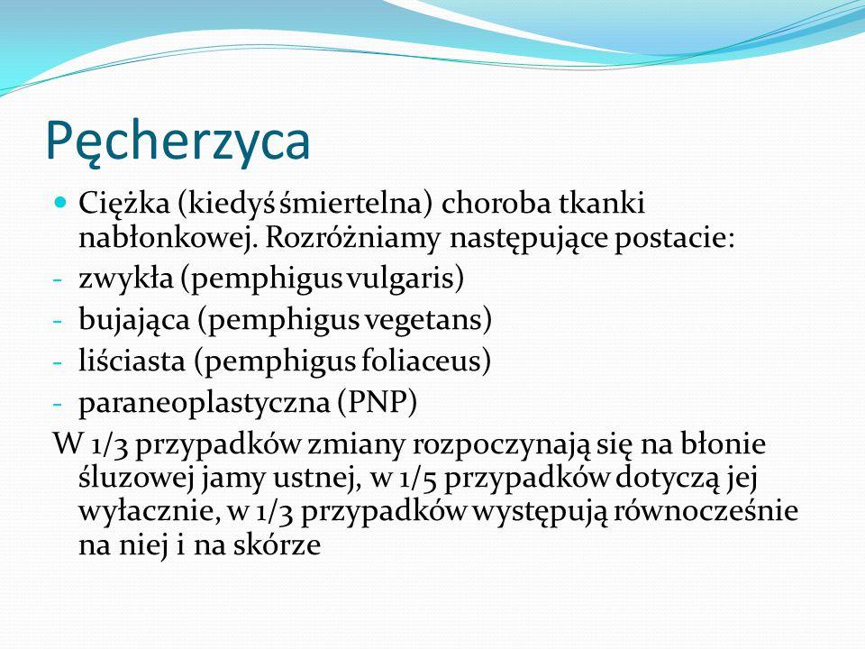 Pęcherzyca Ciężka (kiedyś śmiertelna) choroba tkanki nabłonkowej. Rozróżniamy następujące postacie: