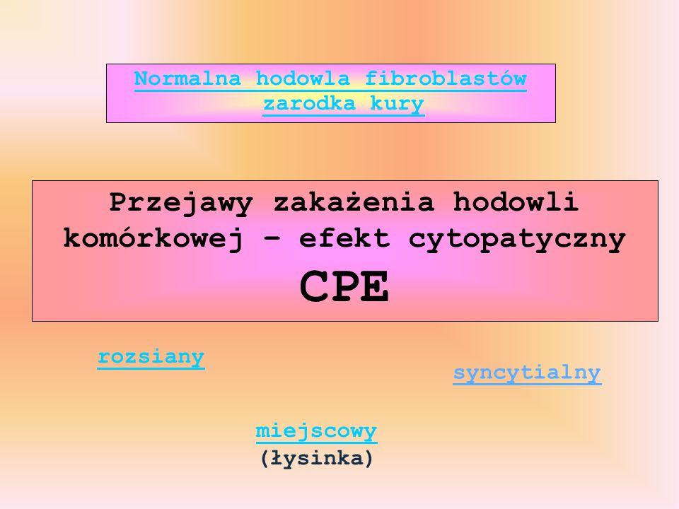Przejawy zakażenia hodowli komórkowej – efekt cytopatyczny CPE