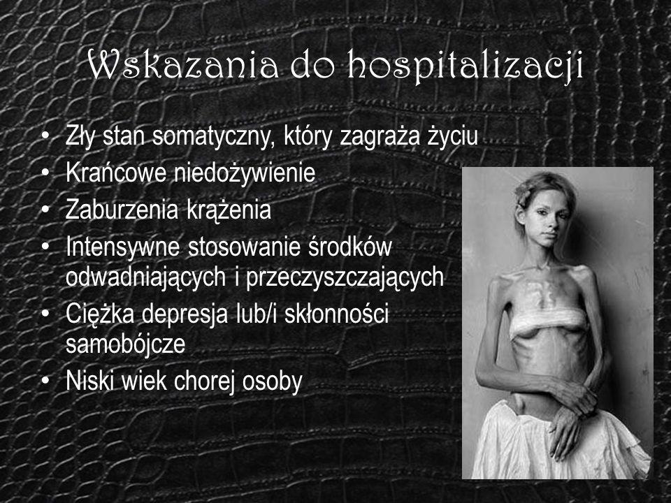 Wskazania do hospitalizacji