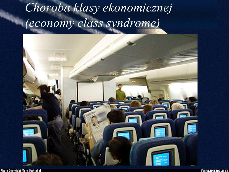 Choroba klasy ekonomicznej (economy class syndrome)
