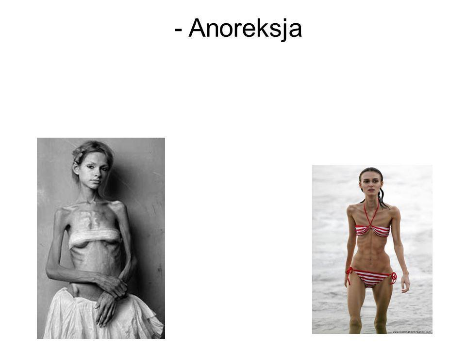 - Anoreksja 21