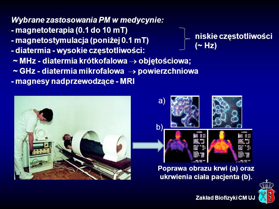 Wybrane zastosowania PM w medycynie: - magnetoterapia (0.1 do 10 mT)