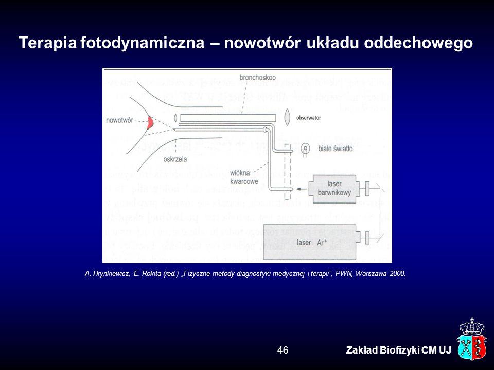 Terapia fotodynamiczna – nowotwór układu oddechowego