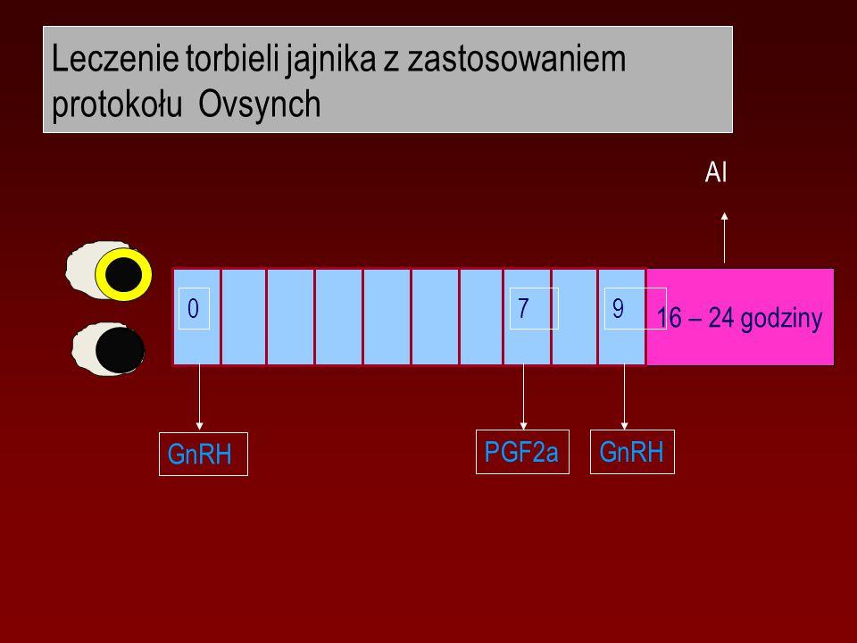 Leczenie torbieli jajnika z zastosowaniem protokołu Ovsynch