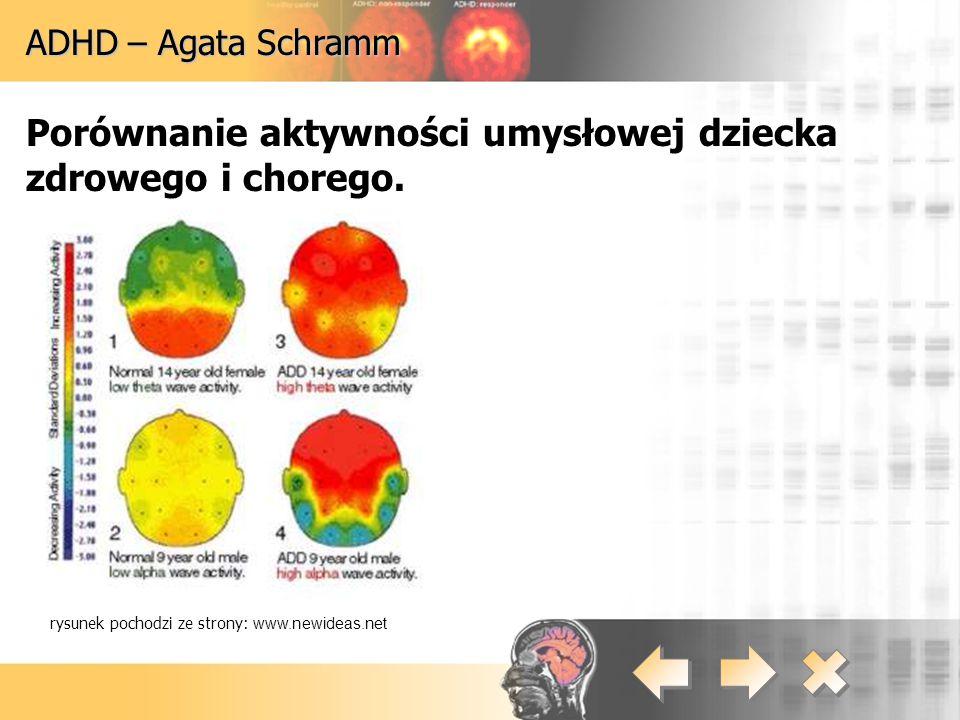 Porównanie aktywności umysłowej dziecka zdrowego i chorego.