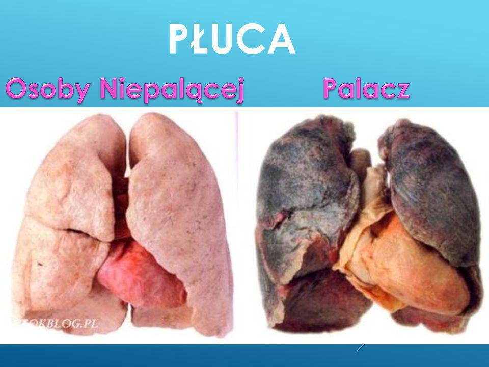 Płuca Osoby Niepalącej Palacz