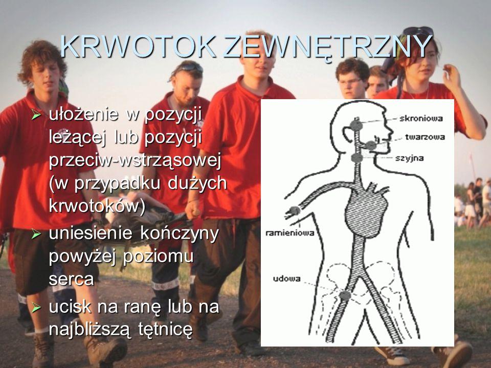 KRWOTOK ZEWNĘTRZNY ułożenie w pozycji leżącej lub pozycji przeciw-wstrząsowej (w przypadku dużych krwotoków)