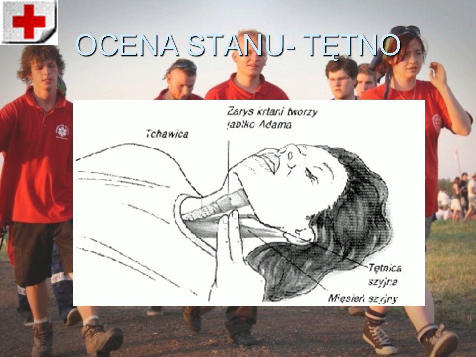 OCENA STANU- TĘTNO