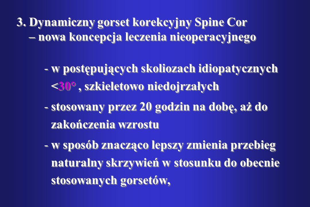 3. Dynamiczny gorset korekcyjny Spine Cor – nowa koncepcja leczenia nieoperacyjnego
