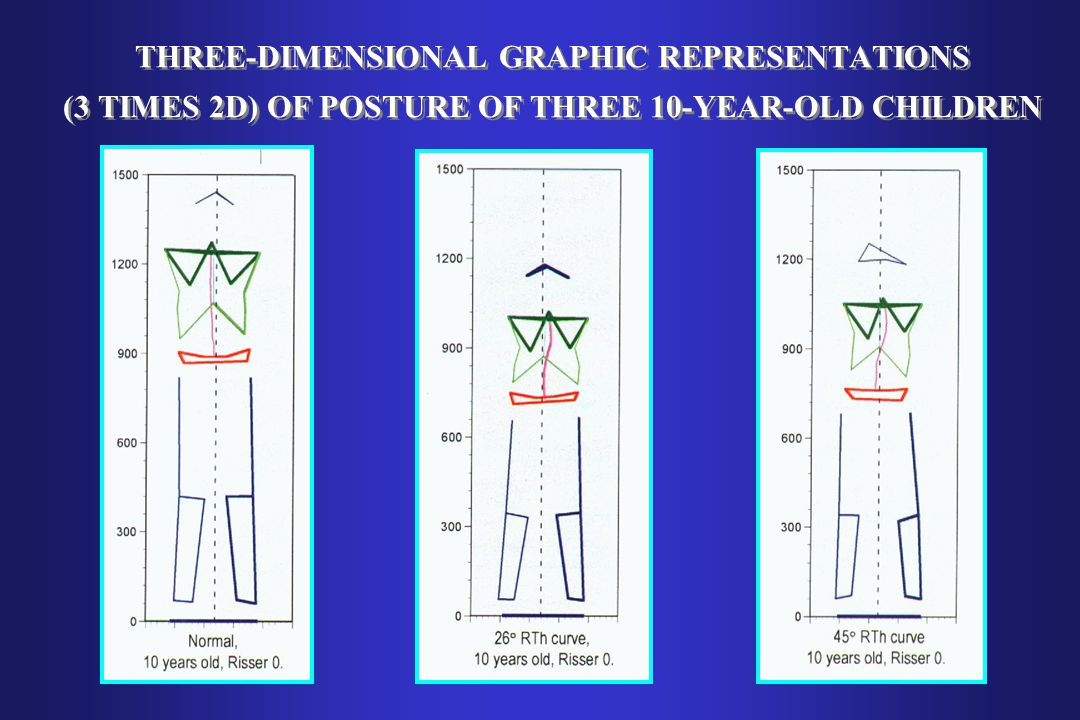 THREE-DIMENSIONAL GRAPHIC REPRESENTATIONS (3 TIMES 2D) OF POSTURE OF THREE 10-YEAR-OLD CHILDREN