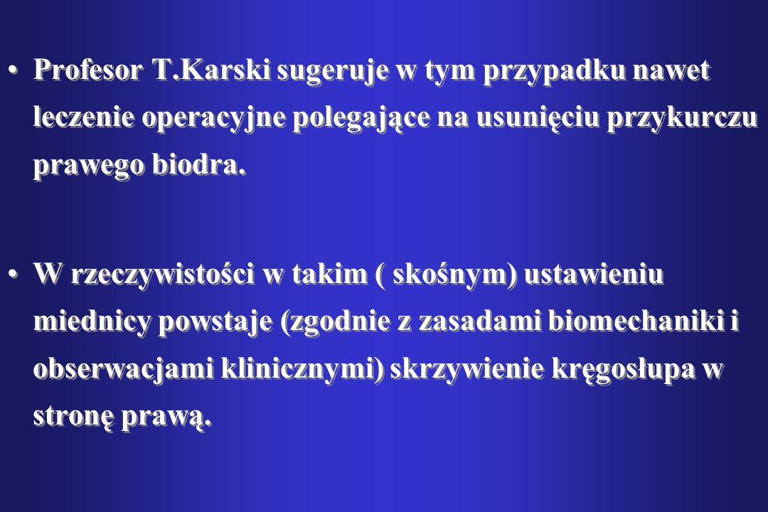 Profesor T.Karski sugeruje w tym przypadku nawet leczenie operacyjne polegające na usunięciu przykurczu prawego biodra.