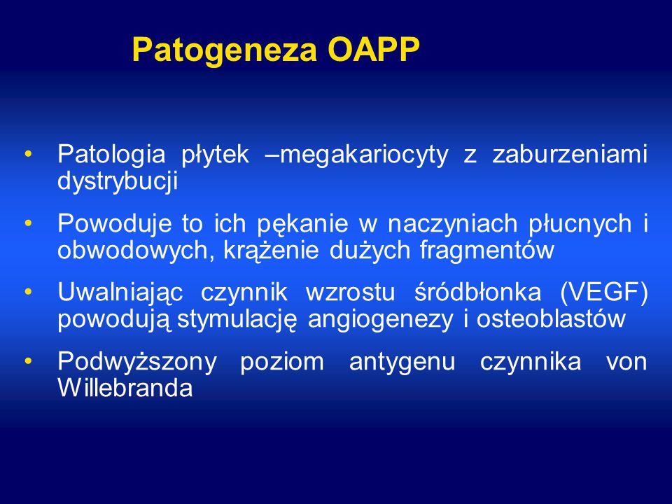 Patogeneza OAPP Patologia płytek –megakariocyty z zaburzeniami dystrybucji.