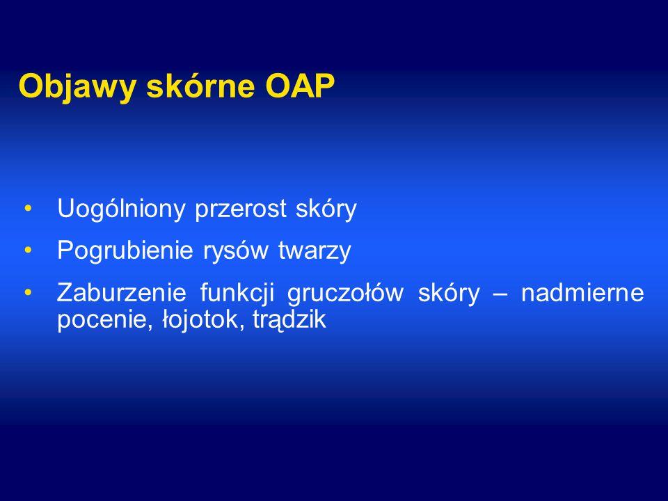 Objawy skórne OAP Uogólniony przerost skóry Pogrubienie rysów twarzy