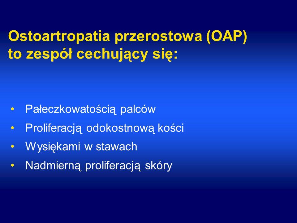 Ostoartropatia przerostowa (OAP) to zespół cechujący się: