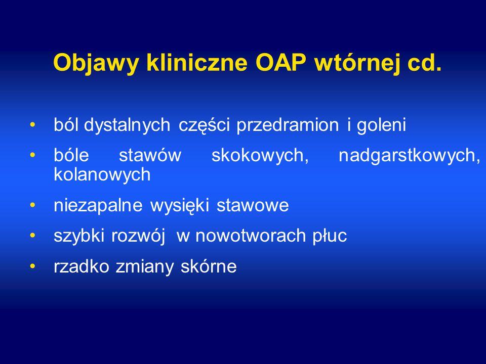 Objawy kliniczne OAP wtórnej cd.
