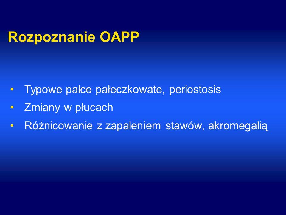 Rozpoznanie OAPP Typowe palce pałeczkowate, periostosis