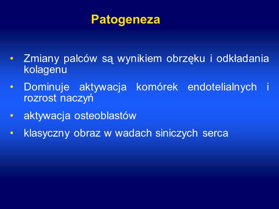 Patogeneza Zmiany palców są wynikiem obrzęku i odkładania kolagenu