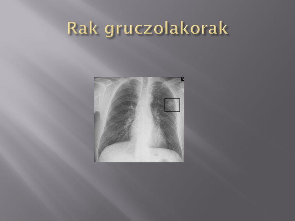 Rak gruczolakorak