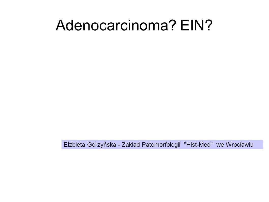 Adenocarcinoma EIN Elżbieta Górzyńska - Zakład Patomorfologii Hist-Med we Wrocławiu