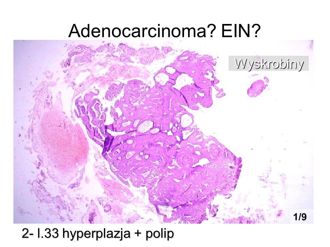 Adenocarcinoma EIN Wyskrobiny 1/9 2- l.33 hyperplazja + polip