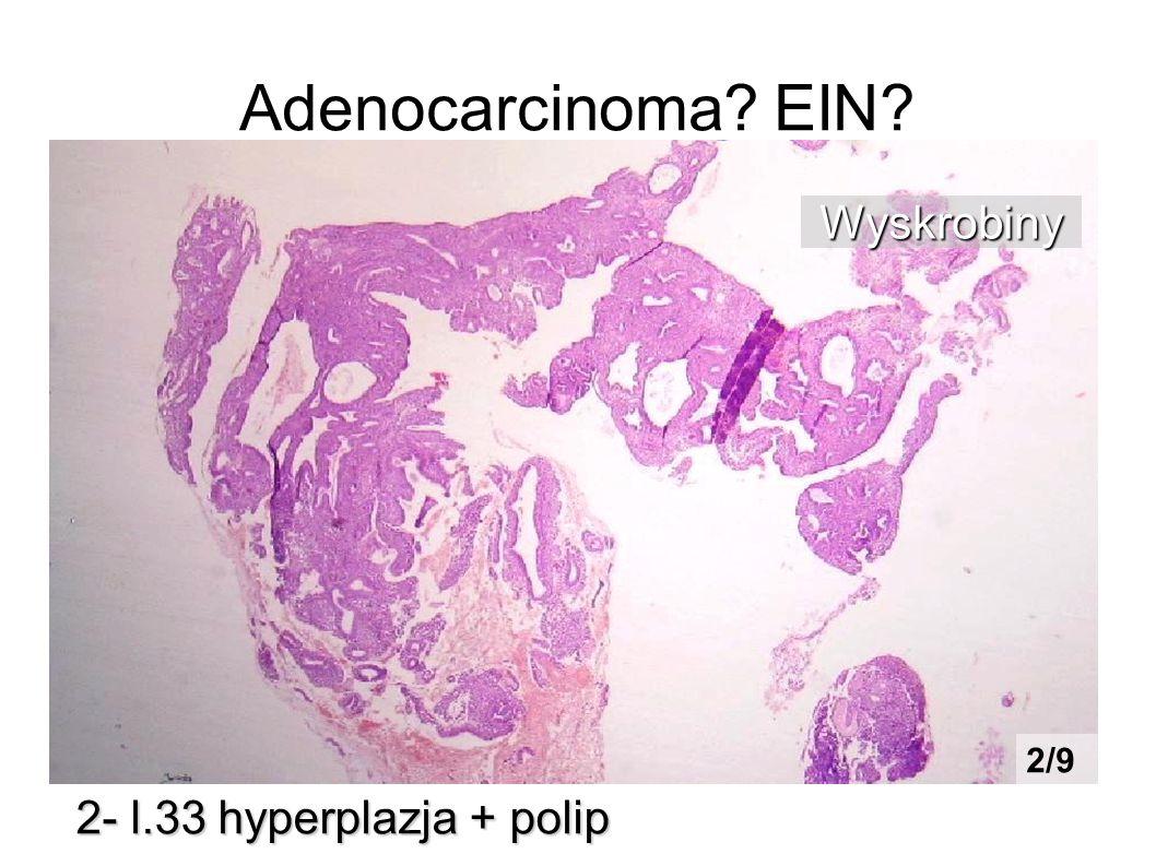 Adenocarcinoma EIN Wyskrobiny 2/9 2- l.33 hyperplazja + polip