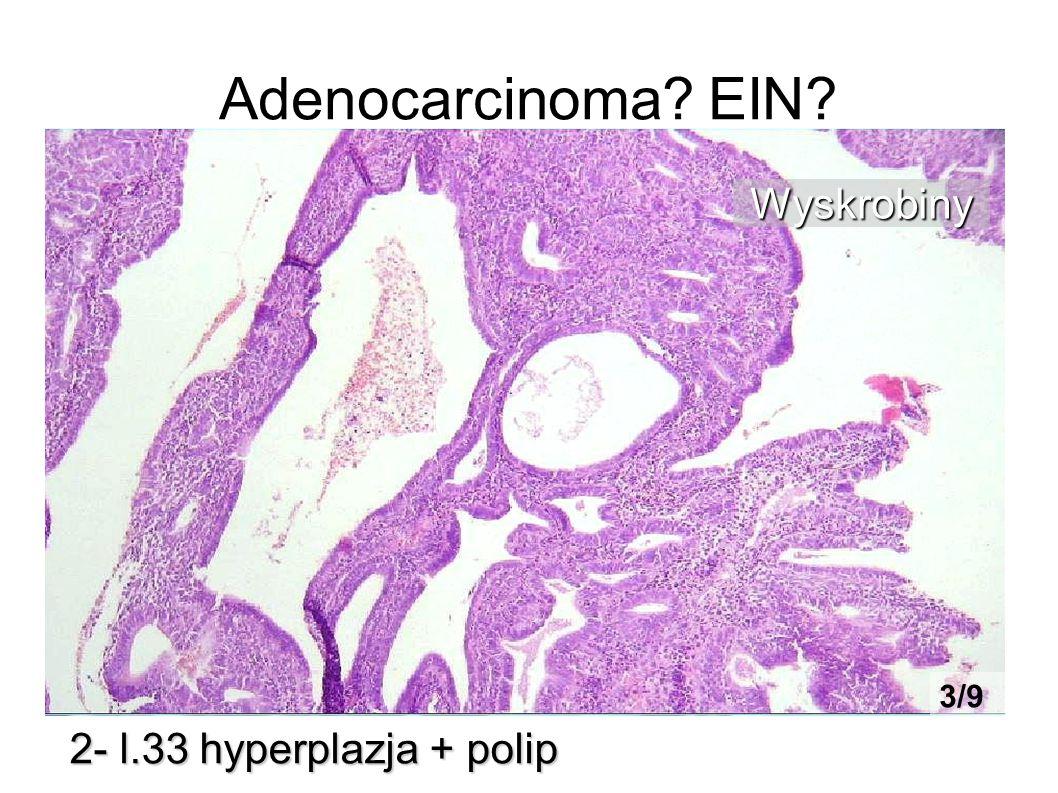 Adenocarcinoma EIN Wyskrobiny 3/9 2- l.33 hyperplazja + polip