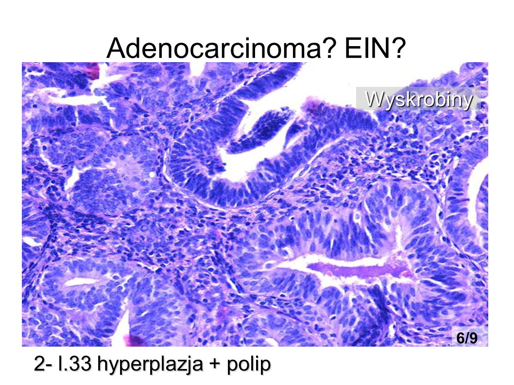 Adenocarcinoma EIN Wyskrobiny 6/9 2- l.33 hyperplazja + polip