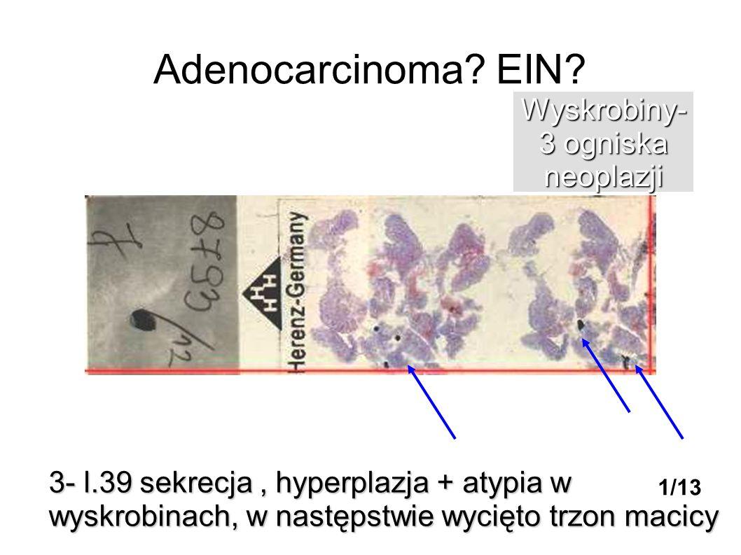 Adenocarcinoma EIN Wyskrobiny- 3 ogniska neoplazji