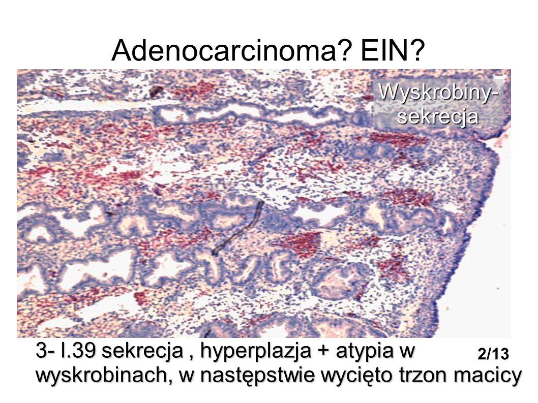 Adenocarcinoma EIN Wyskrobiny- sekrecja