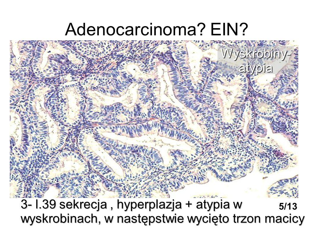 Adenocarcinoma EIN Wyskrobiny- atypia