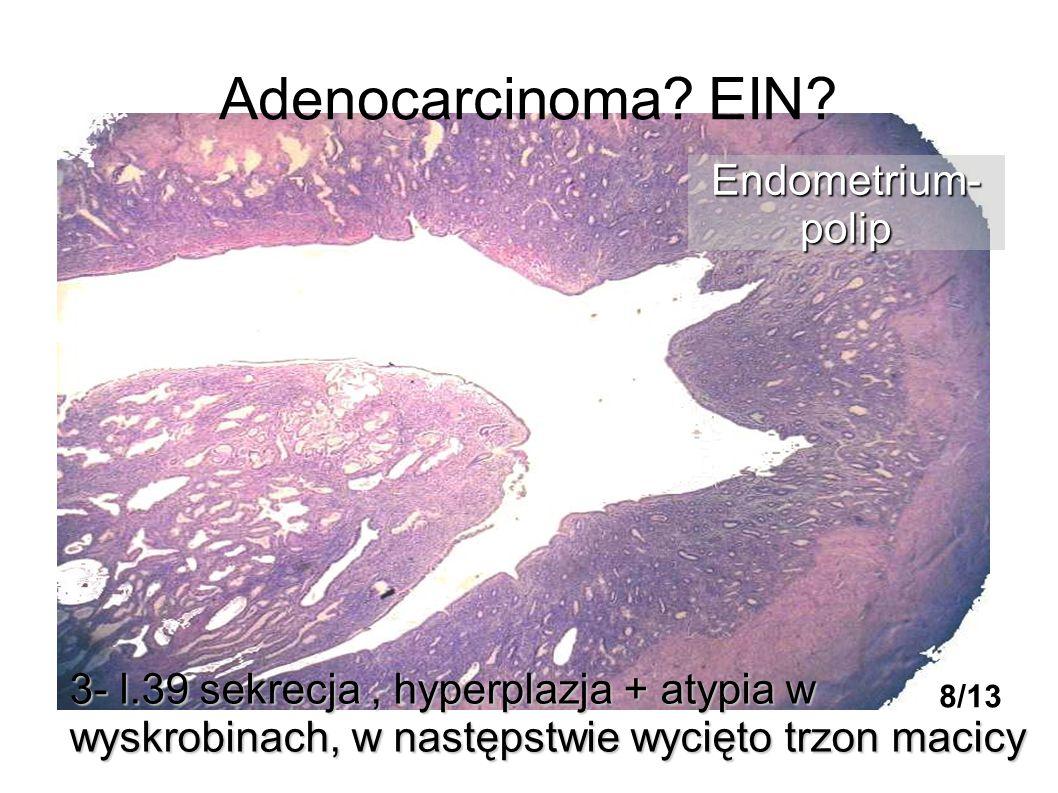 Adenocarcinoma EIN Endometrium- polip