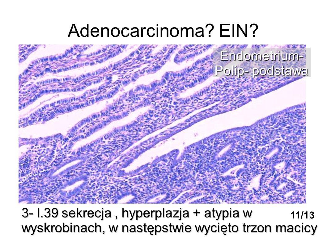 Adenocarcinoma EIN Endometrium- Polip- podstawa