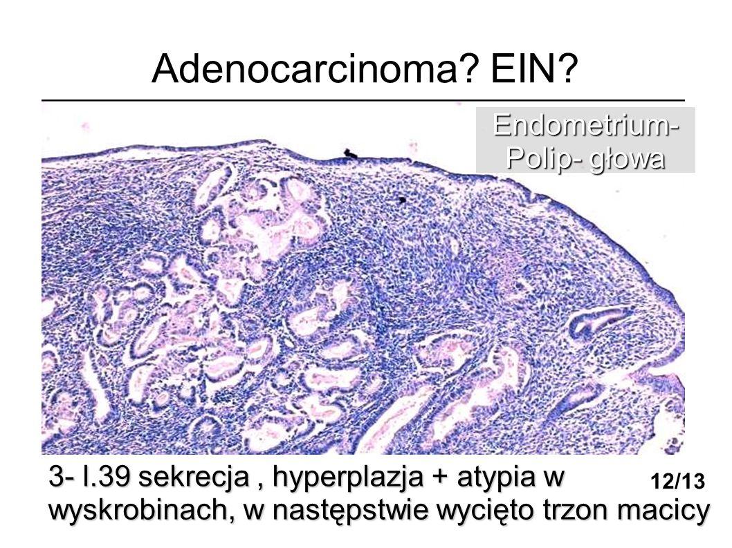 Adenocarcinoma EIN Endometrium- Polip- głowa