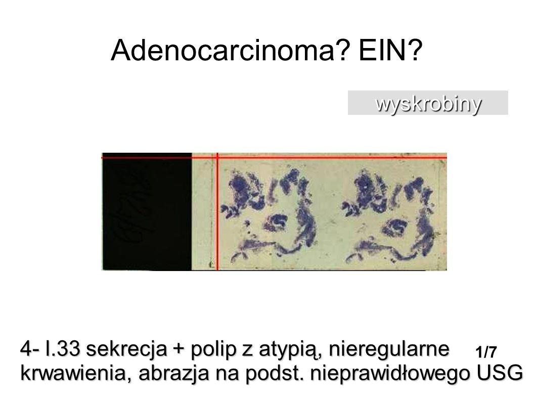 Adenocarcinoma EIN wyskrobiny