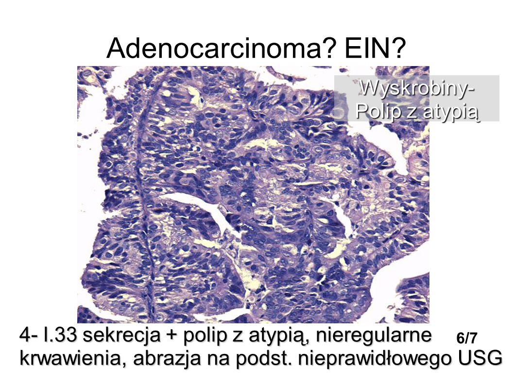 Adenocarcinoma EIN Wyskrobiny- Polip z atypią