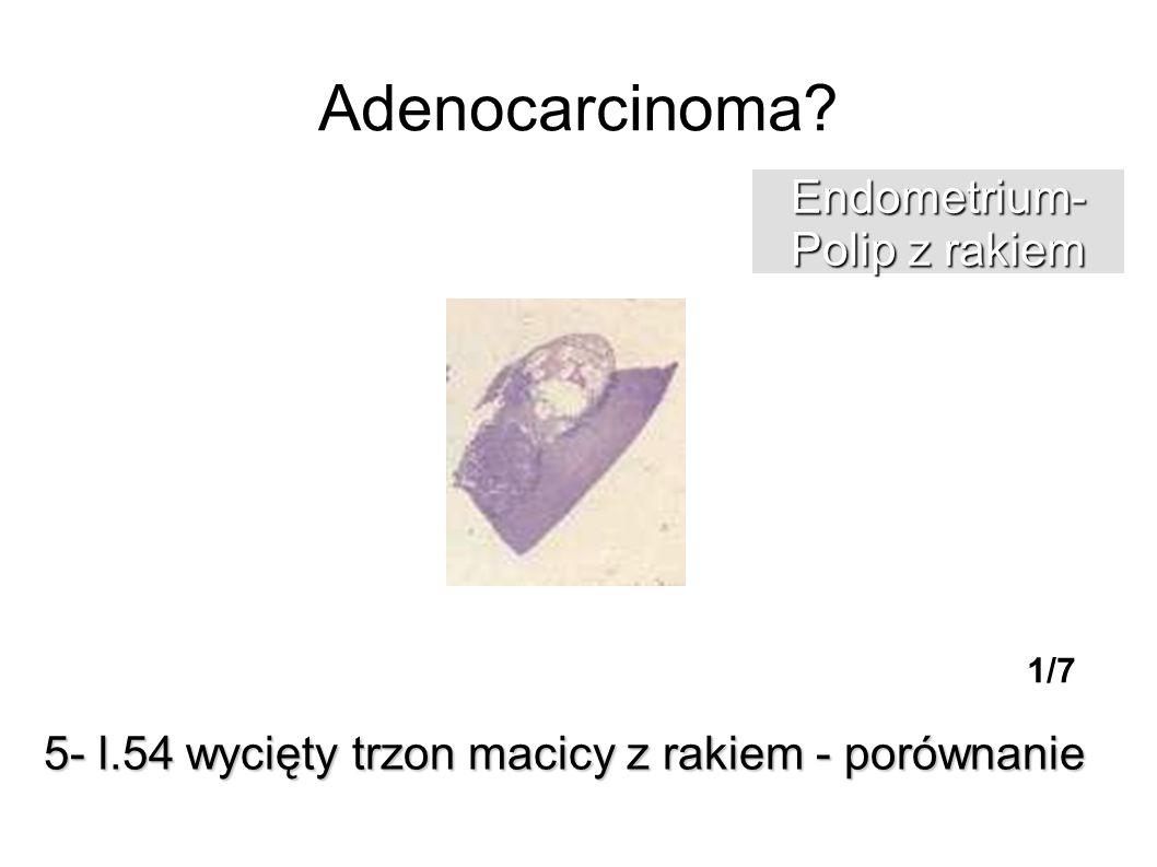 Adenocarcinoma Endometrium- Polip z rakiem